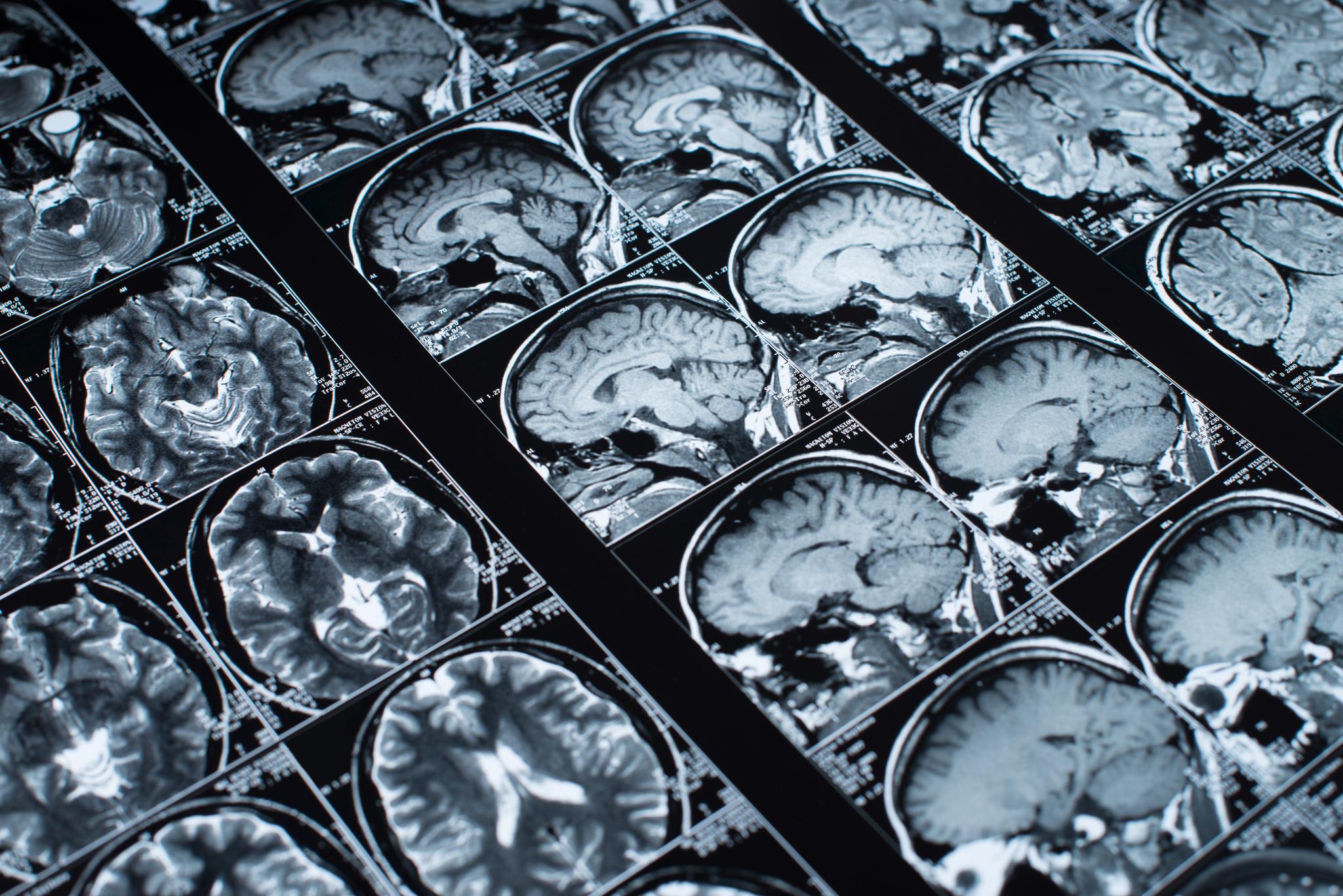 Diagnóstico por imagem e radioterapia